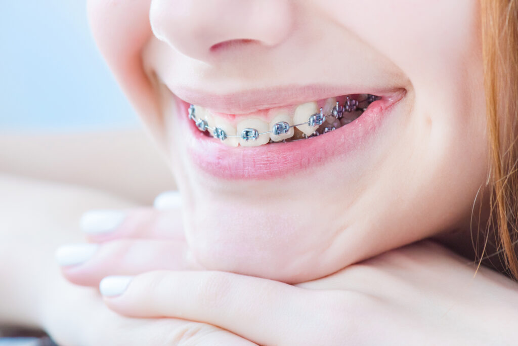 braces on teen teeth